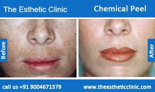Chemical Peel Treatment, Skin Peel, Skin Peeling Treatment Before After Photos in Mumbai, India