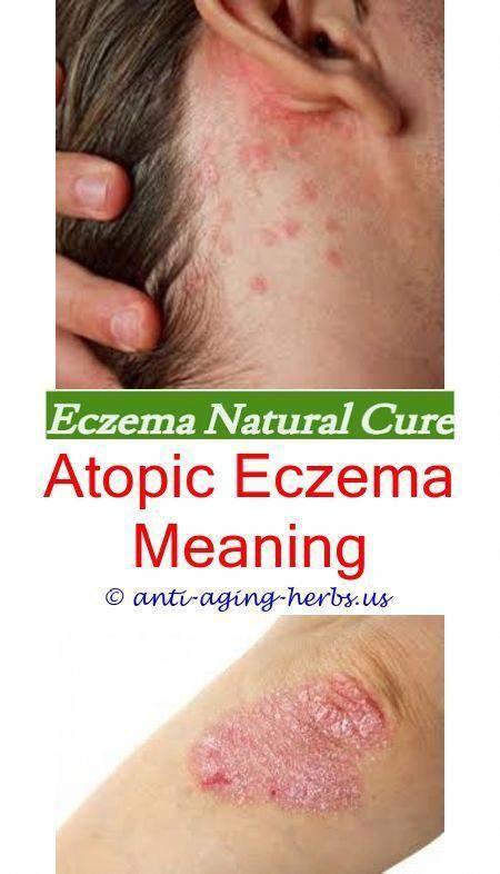 Eczema During Pregnancy >> Fungus Infection During Pregnancy Fungustoenailtreatmentlaser Code