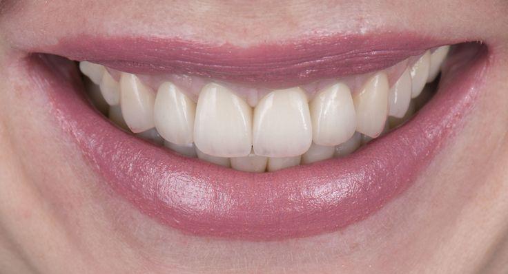 #zambet #rejuvenare #fateteceramice #microchirurgie #smiledesign  http://www.dentcof.ro/cazuri/AdrianaC