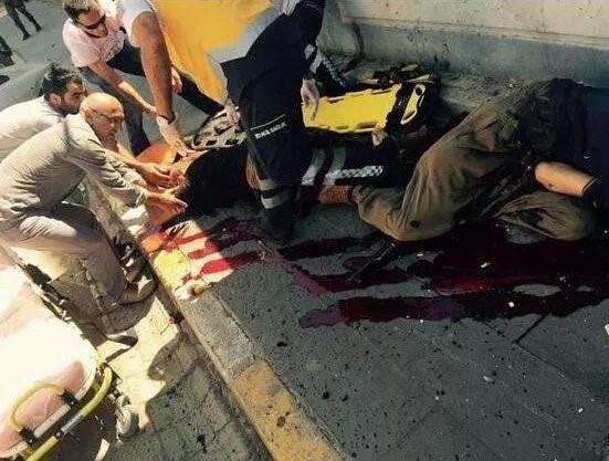 PKKlıların Cesetlerini HDPli Milletvekili Aldı  HDPli Alican Önlü Tuncelide karakola saldırdıktan sonra yaşanan çatışmada öldürülen PKKlı teröristlerin cesetlerini almaya geldi.  Tuncelide Şehit Nahit Bulut Polis Karakoluna PKKlı teröristler tarafından saldırı düzenlendi. Şehir merkezinde polislerle çatışan iki PKKlı öldürüldü 1 polis şehit oldu.      Cesetleri Almaya Geldi  Saldırının ardından bölgede gerginlik sürerken vatandaşlar evlerine çekildi esnaf da kepenk kapattı. HDP Tunceli…
