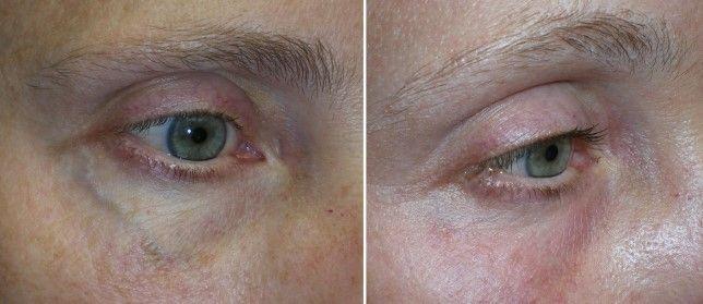 IPL treatments for Dry Eyes.