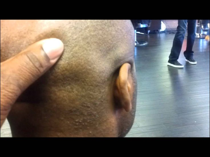 Pimples On Scalp after Haircut