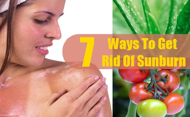 7 Ways To Get Rid Of Sunburn Skin Care Pinterest Sunburn Relief Remedies And Damaged Hair