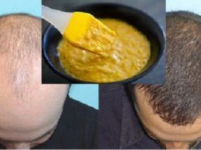 Elképesztően hatékony hajmaszk hajhullás ellen