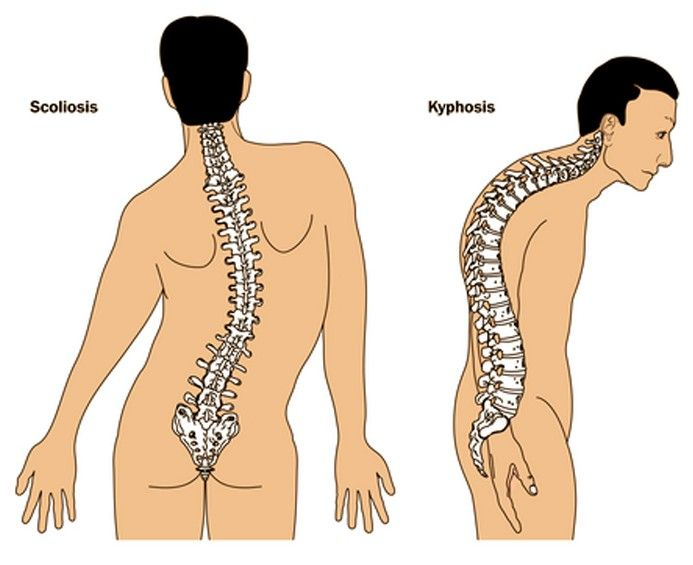 Kyphosis Spine Condition Leads to Severe Back Pain - http://gazettereview.com/2015/08/kyphosis-spine-condition-leads-to-severe-back-pain/