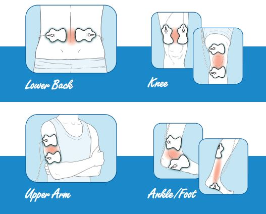 10 Tips For Tens Pad Placement Omron Omron