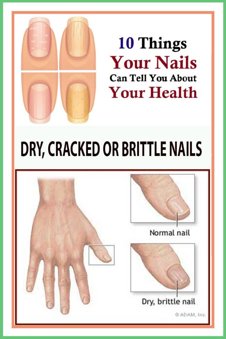 10 Things Your Nails Can Tell You About Your Health Toenails Care In 2020 Nail Health Signs You Nailed It Toe Nails