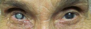 Eye Care Softgel merupakan obat herbal yang direkomendasikan sebagai pencegah dan pengobatan mata katarak tanpa operasi, Harga Bersahabat, barang sampai baru bayar
