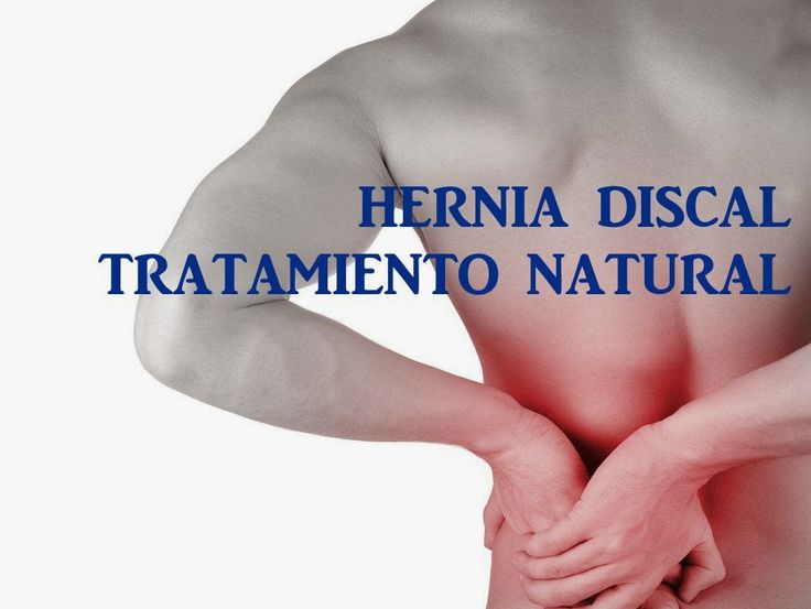 TODOMIKE: HERNIA DISCAL TRATAMIENTO NATURAL