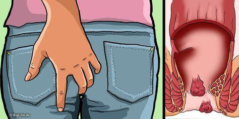Hämorrhoiden sind ein weit verbreitetes Problem, das nur ungerne angesprochen wird. Sie sind ein Teil des Schwellkörpers im Enddarm und dichten den After ab. Sie können verantwortlich für Juckreiz, Nässen oder Brennen sein, sofern sie vergrößert sind. Ein Thema, das keiner gerne bei seinem Arzt ansp...
