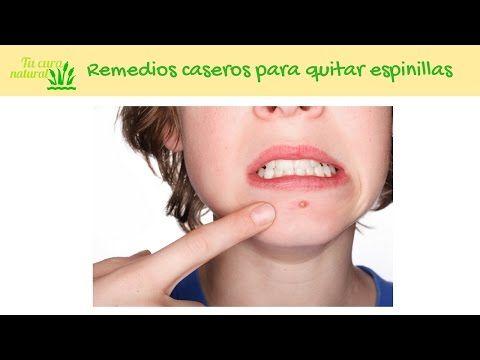 Cómo quitar granos de la cara con remedios caseros ⋆ Tu cura natural