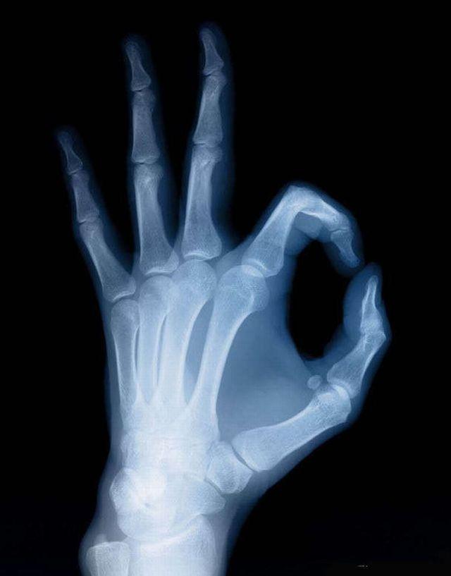 x-ray   Life through X-ray beams. Part 2 (38 pics)