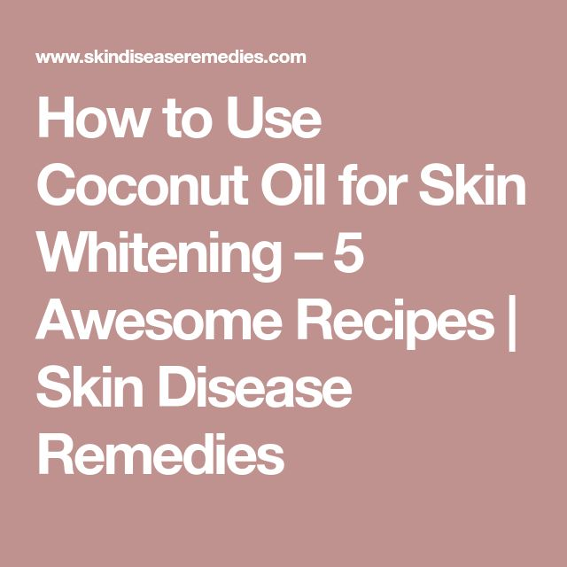 How to Use Coconut Oil for Skin Whitening – 5 Awesome Recipes | Skin Disease Remedies