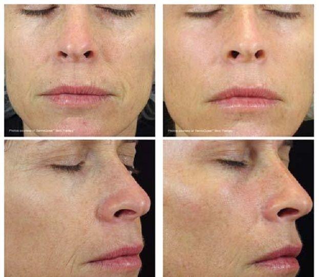 De salicylzuur peeling is speciaal ontwikkelt voor acne en vette huiden. Bij een chemische peeling wordt voor korte tijd een peeling-middel aangebracht op de huid (meestal niet langer dan 5 minuten). Dit middel maakt op een gecontroleerde manier schade aan de huid: het middel lost als het ware de bovenste huidlaag op.