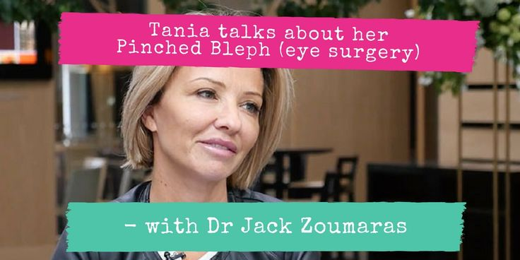 "I caught up with heaps of awesome people at the recent 40th ASAPS conference in Melbourne including Tania, who had a really interesting eye surgery called the ""Pinch Bleph"" with Dr Jack Zoumaras. It's like a 'normal' blepharoplasty only less invasive. Check out Tania's great results in this video interview with her or read her story. SUBSCRIBE TO US ON YOUTUBE! https://www.plasticsurgeryhub.com.au/tania-pinched-bleph-eye-surgery/ #blepharoplasty #eyesurgery #eyelidsurgery…"