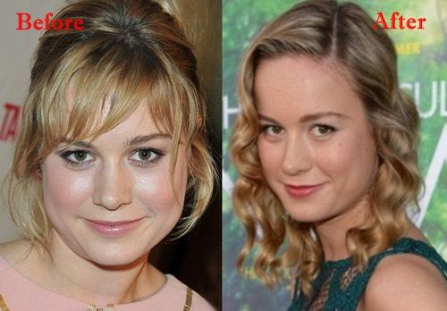 Brie Larson Plastic Surgery Before and After