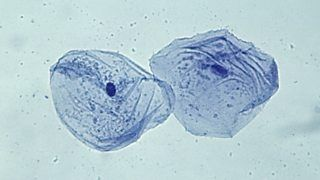 Serenity color:  Cheek cells stained with methylene blue.