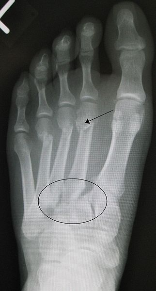 """The Lisfranc injury (also known as the Lisfranc fracture, Lisfranc dislocation, Lisfranc fracture dislocation, tarsometatarsal injury, or simply midfoot injury) is an injury of the foot in which one or more of the metatarsal bones are displaced from the tarsus. This type of injury is named after Jacques Lisfranc de St. Martin (2 April 1790–13 May 1847), a French surgeon and gynecologist who first described the injury in 1815, after the War of the Sixth Coalition."""