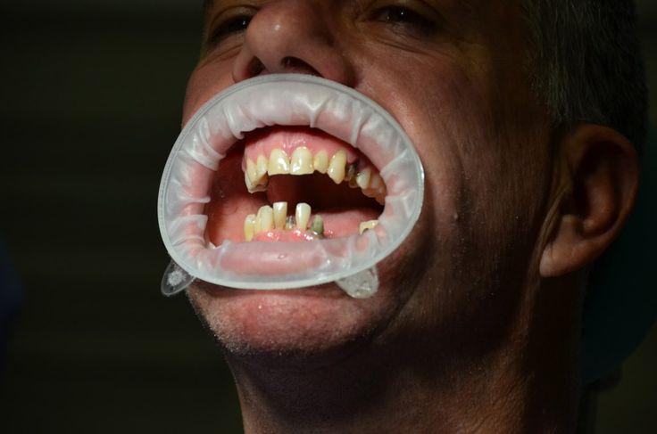 Nel nostro studio medico eseguiamo la pulizia dentale professionale e la rimozione della placca batterica e del tartaro. La rimozione della placca batterica e del tartaro si esegue con strumenti ultrasuono e con scaler/curette manuali. Dopo la rimozione della placca la superficie dei denti si levigano, si lucidano con strisce abrasive, coppette di gomma, spazzolini e paste professionali.http://dentista-croazia-nevedenti.com/protetica-dentale-croazia.html