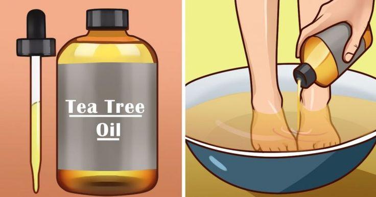 10 silných důvodů, proč by měl mít každý doma tea tree olej - Vitalitis.cz