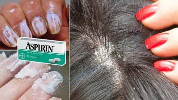 Tıp Dünyası Bu Mucizeyi Konuşuyor! 2 Adet Aspirini Eritin ve…