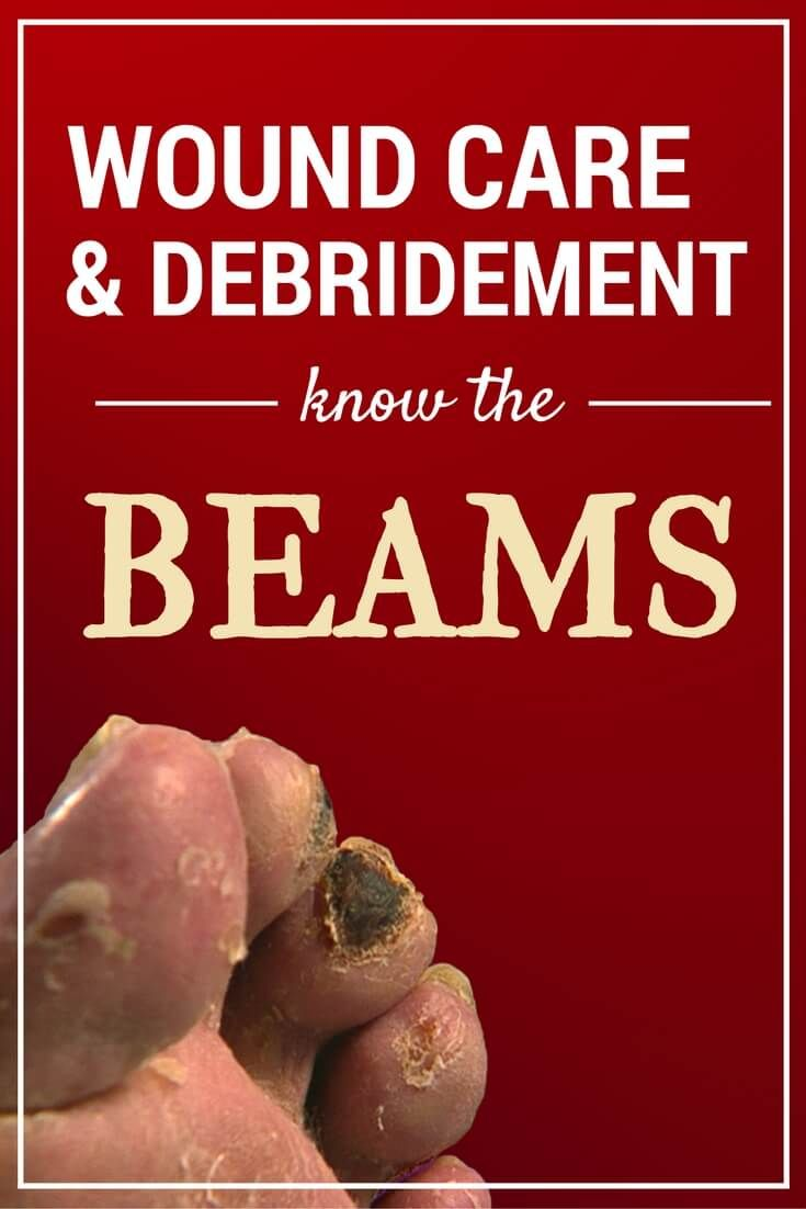 Wound Care and Debridement: Know the BEAMS - These five major debridement methods for wound clinicians are easy to remember (hint: BEAMS), and key to the wound healing process. via @woundcareeducat