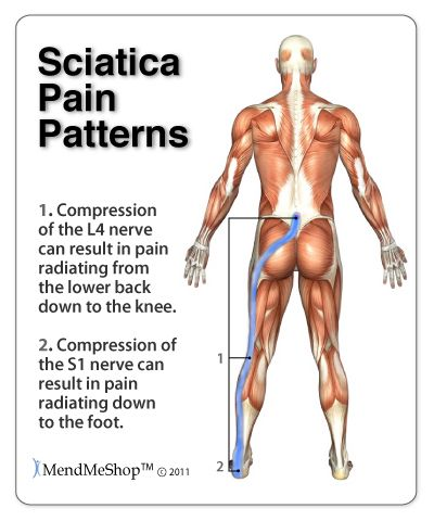 Symptoms of Sciatica- Pain, tingling or numbness that radiates through the lower back, buttocks, and down the back of the leg possibly as far as the foot. Pain starts slowly and worsens after standing, sitting, bending backward, walking or sleeping at night #mendmyhip #backpain