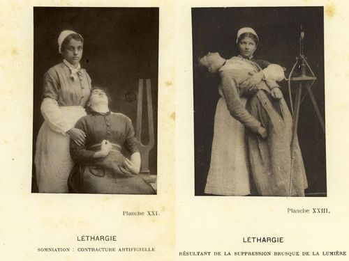 Jean-Martin Charcot (1825 - 1893), director of the hospital Salpêtrière Paris. He took an interest in the malady then called hysteria.   He believed that a hypnotized state was very similar to a bout of hysteria, and so he hypnotized his patients in order to induce and study their symptoms. He did not plan to cure them by hypnosis -- in fact, he felt that only hysterics could be hypnotized. He would hypnotize patients for groups of students and others...