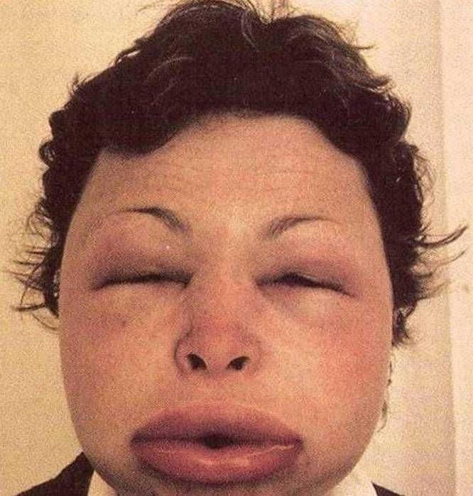 Urticaria face