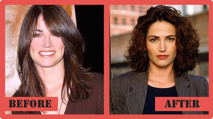 Kim delaney's before and after plastic surgery photos | Top Celebrity Surgery