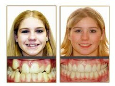 #Orthodontists_Near_Me, #Orthodontics_Near_Me, #Orthodontist_Asheville