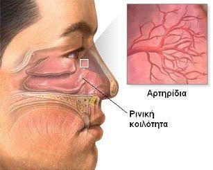 ΕΥίασις Κηφισιά: Ρινορραγία: γιατί ξαφνικά αιμορραγεί η μύτη μαςΟι περισσότερες ρινορραγίες είναι απλά βασανιστικές! Σε μερικούς ανθρώπους, ιδιαίτερα σε παιδιά, η αιμορραγία από τη μύτη (επίσταξη ή ρινορραγία) συμβαίνει συχνά.