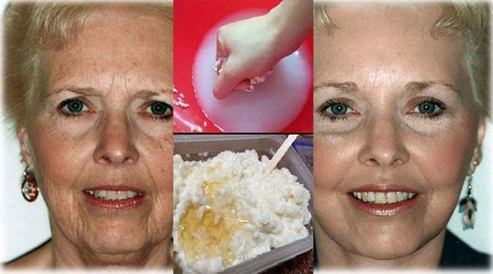 Mii de femei folosesc aceasta crema preparata in casa pentru a face ca pielea lor sa fie mai tanara si pentru a scapa complet de riduri. Vei arata cu 10 ani mai tanara peste noapte!! Afla care este reteta! - dr. Andrei Laslău