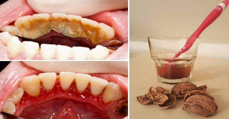 Každý se rád pyšní zdravým chrupem. Kromě vzhledu krásných bílých zubů je důležitá také prevence před největším nepřítelem zubů a to je zubní kámen. I když se bohužel velmi často stává, že zubní kámen je příčinou pozdějších závažných onemocnění. Na to, jak se zbavit zubního kamene existuje spousta nápadů. Většina lidí samozřejmě preferuje zubního lékaře a je to v pořádku. Existuje ale také starý babský přípravek, který v boji se zubním kamenem dělá hotové zázraky.
