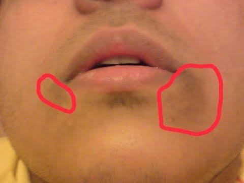 How to Get Rid of Dark Skin Around Mouth / Remove Hyperpigmentation, Dark Upper Lip & Dark Skin - YouTube