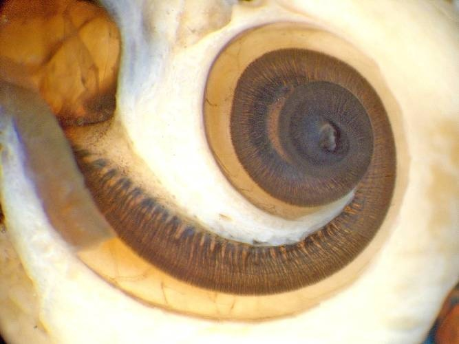 Cochlea displaying the Organ of Corti - the essential part of your functional hearing from which protrude small hair-like projections that are exposed nerves which respond to alterations in electrical potential in the ear