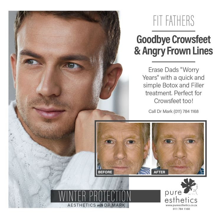 "FIT FATHERS… Goodbye #Crowsfeet & Angry #Frown Lines Erase Dads ""Worry Years"" with a quick and simple #Botox and #Filler treatment. Perfect for Crowsfeet too! Call Dr Mark (011) 784 1168 #Aesthetics #DrMark #PureEsthetics"