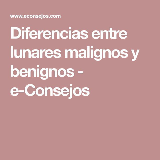 Diferencias entre lunares malignos y benignos - e-Consejos