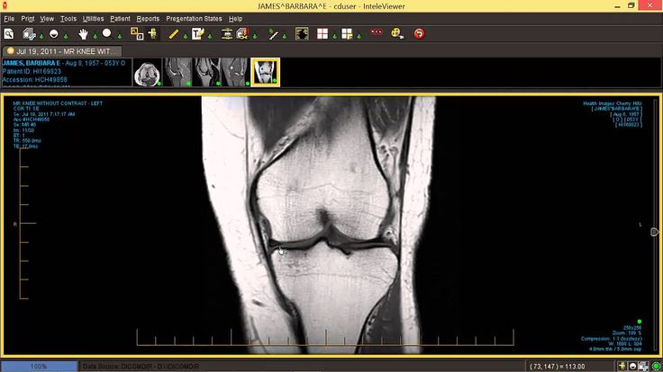 How to read your knee MRI - by Dr Chris Centano.