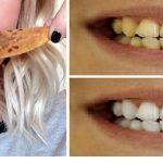 Comment Blanchir Vos Dents Avec La Peau De Banane