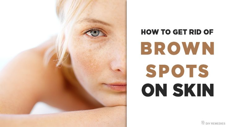 Brown spots are mainly caused due to the over exposure of skin to the sun's harmful UV rays. This prolonged exposure will increase the production of melanocytes that in turn raises melanin in the skin which turns the skin darker. These painless dark patches on the skin are also termed as dark spots, sun spots, …