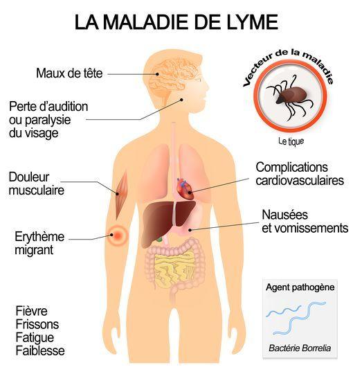 Maladie de lyme : les symptomes et effets de la maladie #Santé