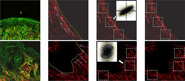 Figure 1 from Nonlinear Optical Microscopy Signal Processing Strategies in Cancer, published in Cancer Informatics http://www.la-press.com/article.php?article_id=4148