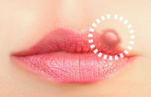 Soluciones naturales para el herpes labial El herpes simple es una enfermedad infecciosa inflamatoria producida por un virus que se caracteriza por la aparición de lesiones cutáneas formadas por pequeñas ampollas agrupadas en racimo y rodeadas de un aro rojo.