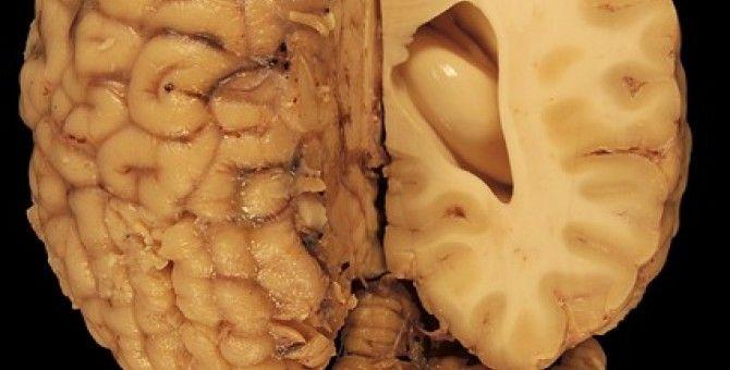 Half Brain is Better Than Full Brain. Part 1 of 5