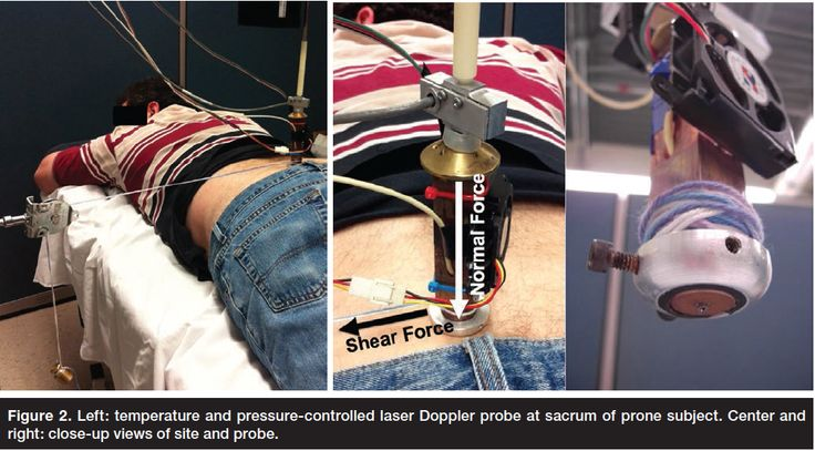 Relative Contributions of Interface Pressure, Shear Stress, and Temperature on Ischemic-induced, Skin-reactive Hyperemia in Healthy Volunteers: A Repeated Measures Laboratory Study