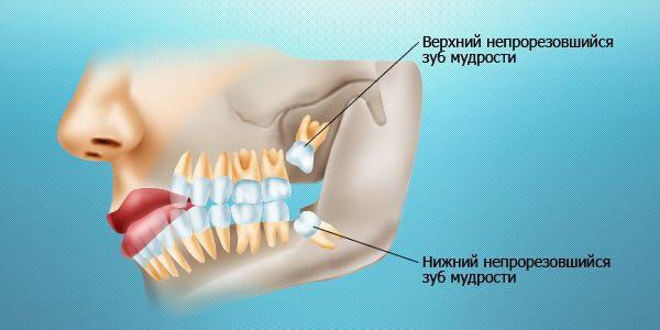 Удаление зубов в Харькове. Зубы мудрости, удаление зубов мудрости в Харькове. Цены на удаление зубов.