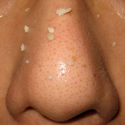 How To Remove Nose Blackheads Naturally | The Beauty Goddess