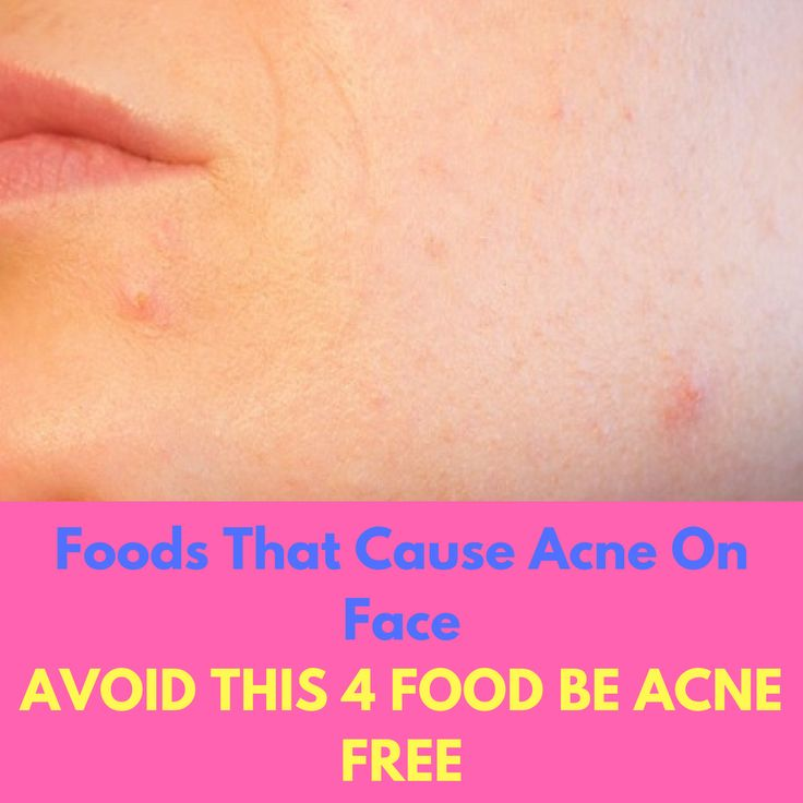 Foods That Cause Acne On Face – Stop Eating This Four Foods #foodsthatcauseacneonface #foodsthatcauseacneskin #foodsthatcauseacnefaces