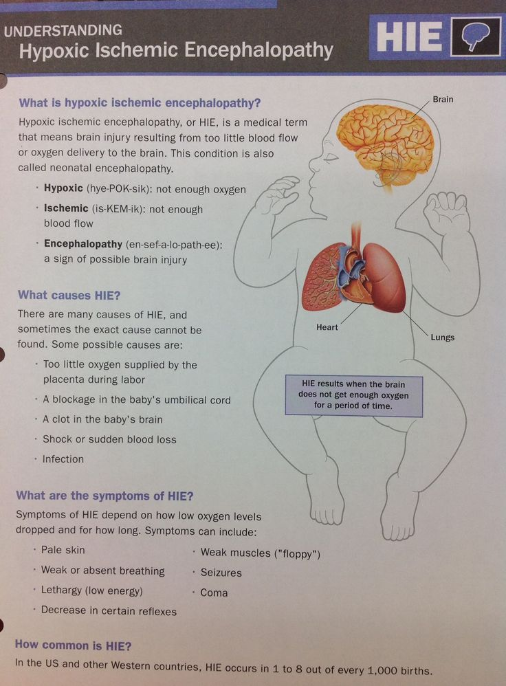 Understanding Hypoxic Ischemic Encephalopathy. #what #knowledge #askquestions